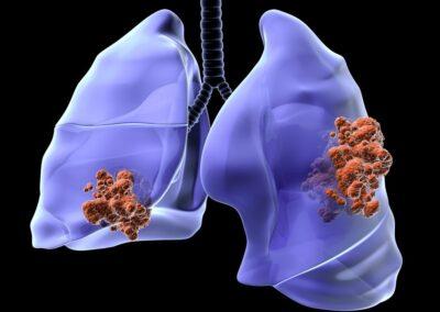 Meet the expert Immunoterapia nel trattamento del carcinoma polmonare metastatico avanzato – San Fermo della Battaglia (CO) 1 Febbraio 2021
