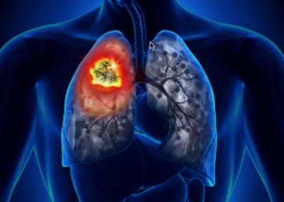 Immunoterapia e neoplasie polmonari – Corso RES-Videoconferenza 27 Maggio 2021