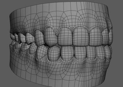 Roma Caput Digital Dentistry: dalla prima visita alla riabilitazione completa nell'era del digitale – Roma (RM) 18 Settembre 2021